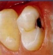 پالپیت دندان چیست؟