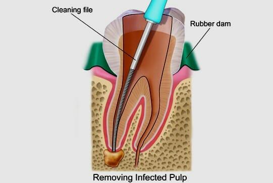 انواع روش های درمان ریشه دندان (عصب کشی)