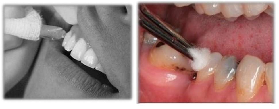 معاینه ریشه دندان (تست پالپ دندان)