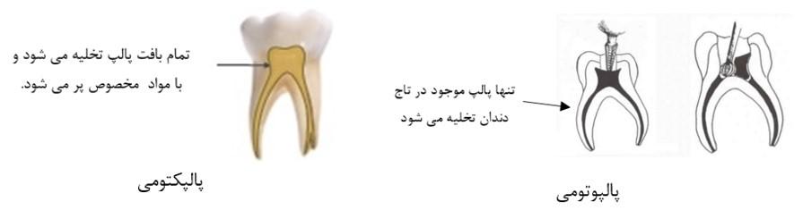 درمان پالپ دندان کودکان (پالپوتومی و پالپکتومی)