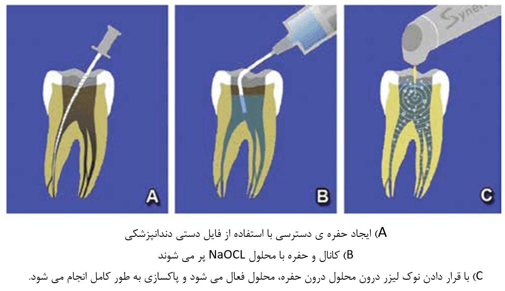 جراحی انتهای ریشه دندان با کمک لیزر