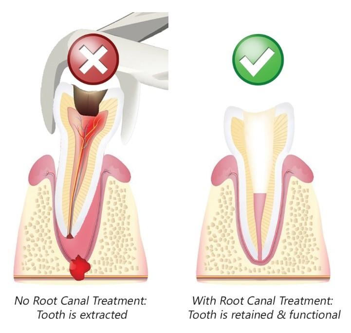 به تعویق انداختن درمان ریشه دندان