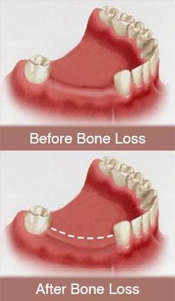 چرا ایمپلنت های دندانی؟