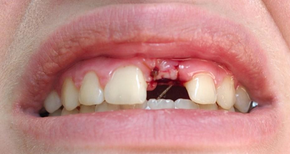 جراحی کاشت ایمپلنت دندانی