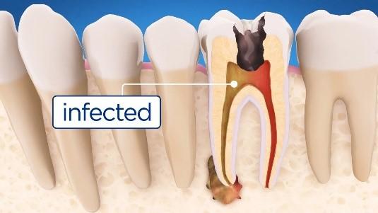 تفاوت پر کردن و عصب کشی دندان