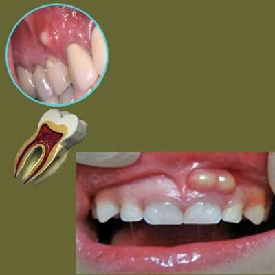 تشخیص و درمان آبسه دندان