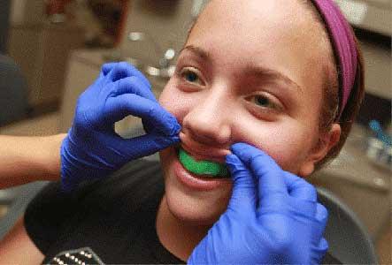 علل مرگ دندان یا عصب دندان