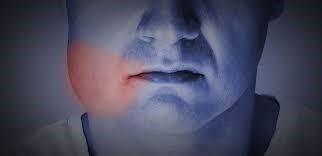مراقبت های پس از جراحی کاشت ایمپلنت های دندانی