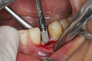 مشکلات پس از کاشت ایمپلنت های دندانی