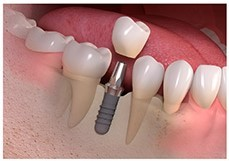اجزاء ایمپلنت های دندانی