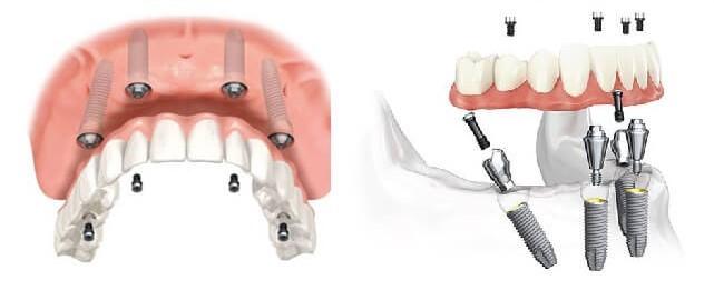 مشکلات پس از کاشت ایمپلنت های دندانی - بخش دوم
