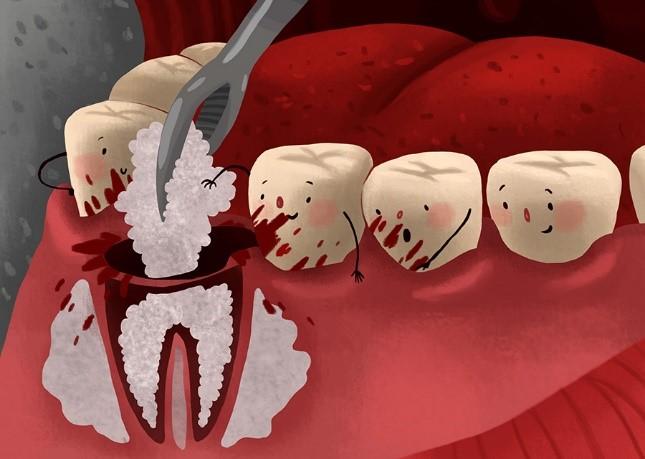 پیوند استخوان قبل از جراحی کاشت ایمپلنت های دندانی