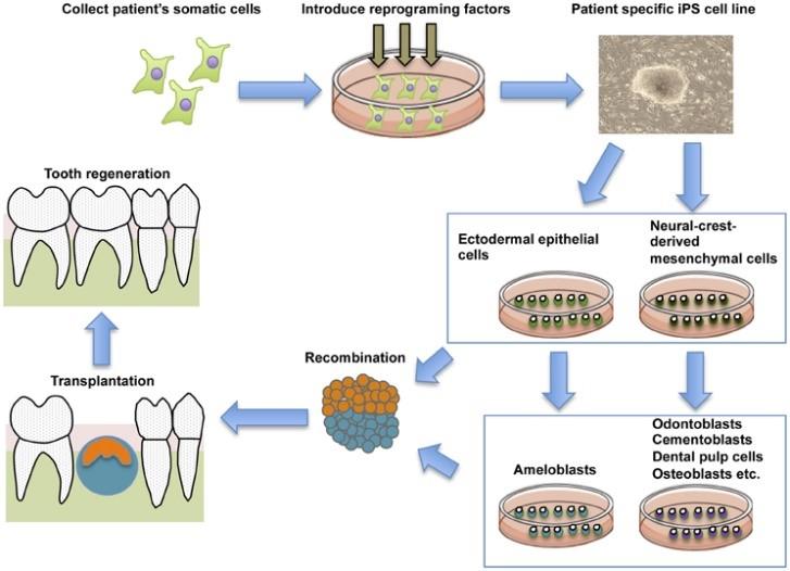 استفاده از سلول های بنیادی برای درمان ریشه یا عصب کشی