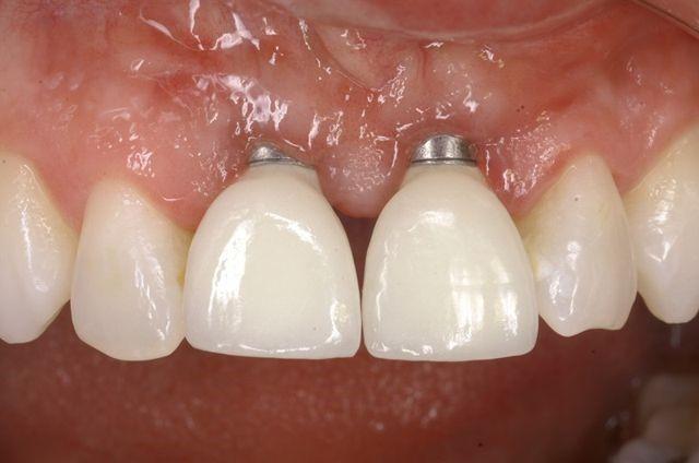 علل شکست ایمپلنت دندانی
