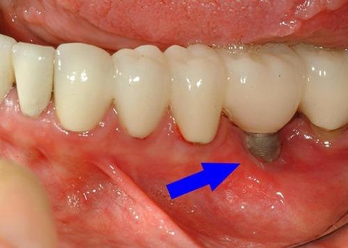 شکست کاشت ایمپلنت دندانی