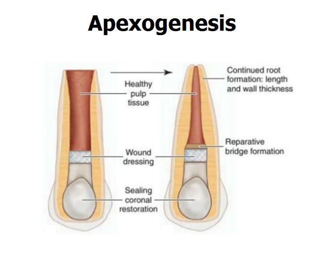 اَپِکسیفیکاسیون و اَپِکسوژنزیس