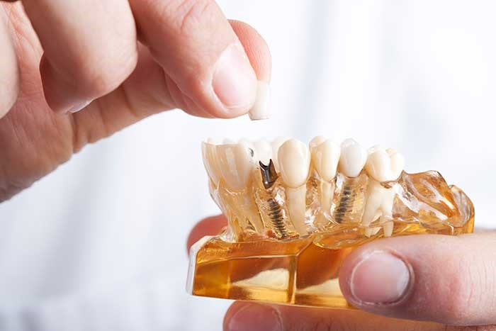 مقایسه ایمپلنت دندانی فوری با ایمپلنت سنتی