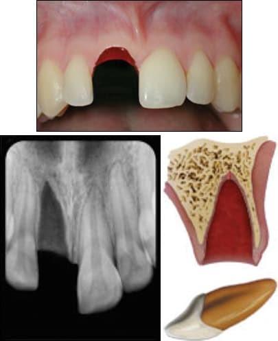 شکستگی و خارج شدن دندان از حفره