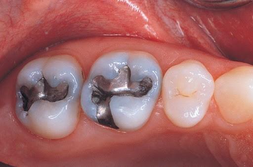 موادی برای پر کردن دندان