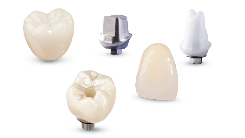 اتصال روکش به ایمپلنت دندان