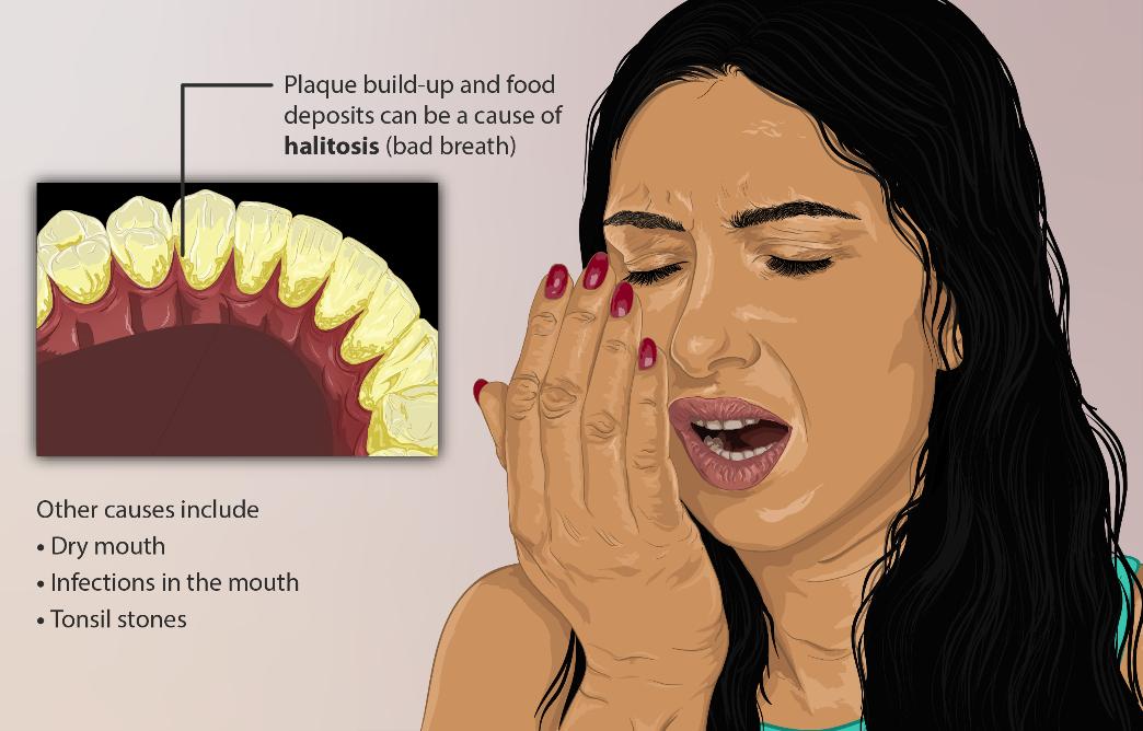 بوی بد دهان و از دست دادن دندان