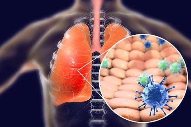 بیماری کرونا ویروس