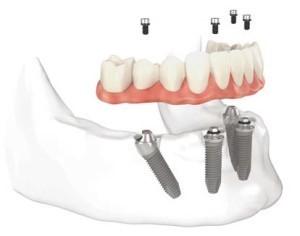 پروتزهای مصنوعی و ایمپلنت های دندانی