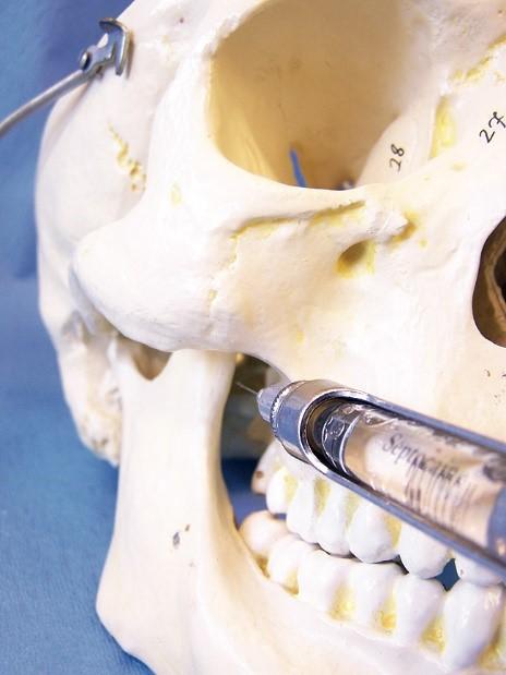 بی حسی موضعی و بیهوشی کامل در دندانپزشکی