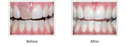 بلیچینگ یا سفید کردن داخلی دندان