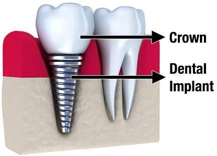 روکشهای دندانی