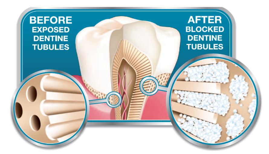 دلیل درد ناگهانی همه دندان