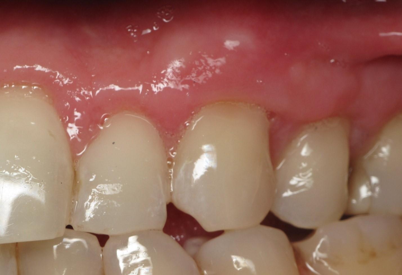 ایمپلنت دندانی با بیماری لثه