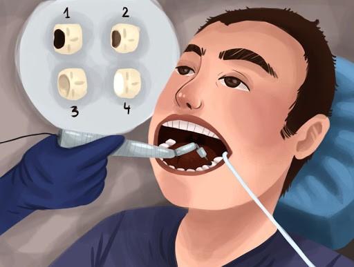 حسایت دندان پس از پر کردن