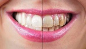 جرمگیری و تسطیح سطح ریشه دندان