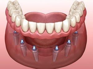 زمان برای کاشت ایمپلنت پس از کشیدن دندان