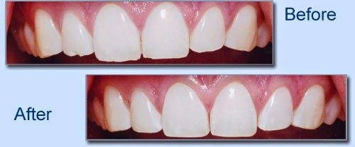 کانتور دندان تراش دندان