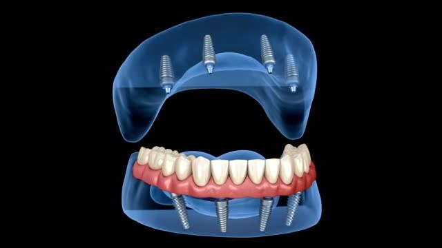 باورهای نادرست ایمپلنت دندانی