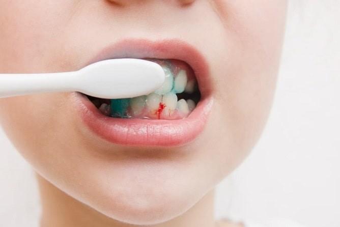 علل خونریزی لثه در هنگام مسواک زدن